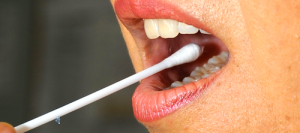 mouth swab kit